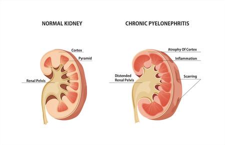 pus: renale normale e cronica pielonefrite. Vettoriali