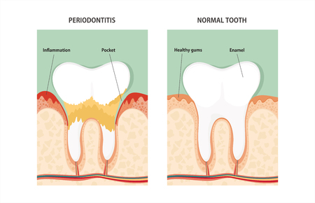inflammatory: Tooth periodontal disease