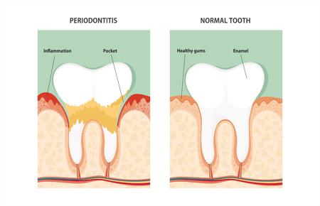 dentin: Tooth periodontal disease