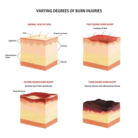 Skin burn classification. First, second and third degree skin burns