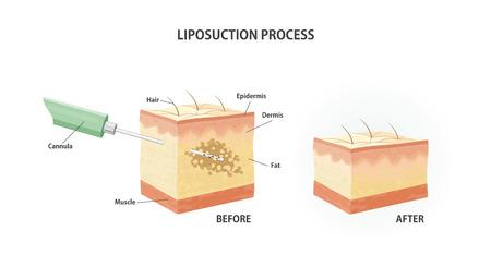 rejuvenation: Liposuction process.Suction-assisted liposuction. Vector illustration Illustration