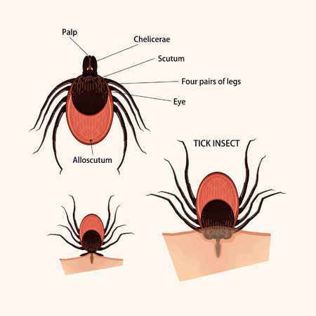 borreliosis: Tick insect Illustration