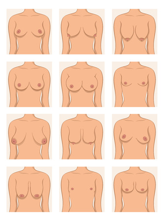 Types of womens breasts
