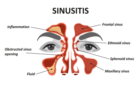 Sinusitis. Seno nasal sano e inflamado Foto de archivo - 109903344