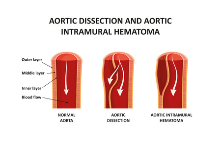 Aortic dissection and aortic intramural hematoma Reklamní fotografie - 109903345