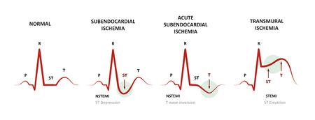 Diagnosis of Myocardial Ischemia (NSTEMI, STEMI) EKG of subendocardial ischemia and transmural ischemia