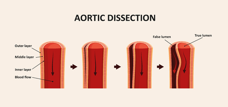 Aortic Dissection, Aortic Aneurysm Stock Photo