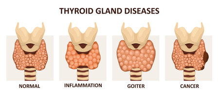Thyroid gland diseases