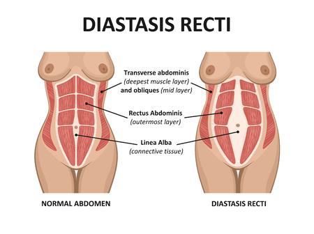 Diástasis de rectos abdominales. Diástasis de los músculos abdominales después del embarazo, el embarazo y el parto. Foto de archivo