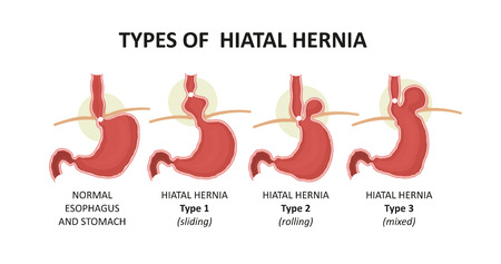 types of hiatal hernia