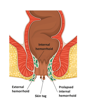Types of hemorrhoids.