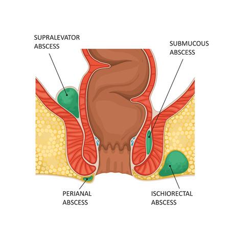 Anal abscess. Vector illustration
