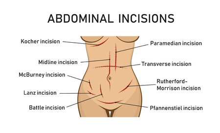 Abdominal incisions. Surgery. Vector illustration