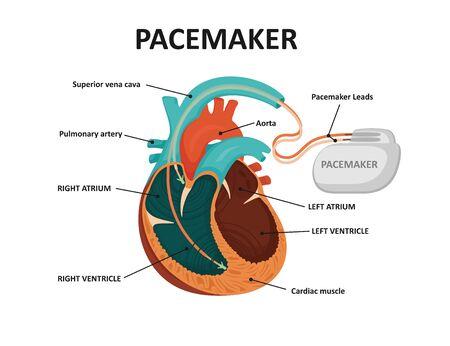Coeur humain avec stimulateur cardiaque. Implant cardiaque