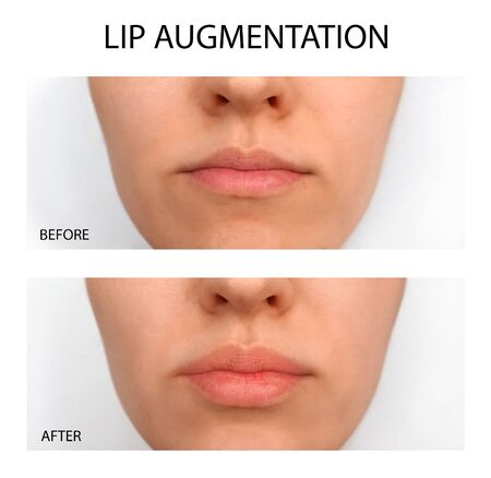 Female lips before and after augmentation. Beauty plastic
