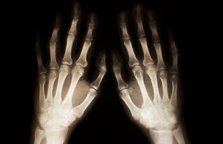 X-ray of hands photo