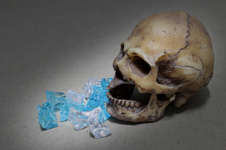 dientes con caries: decayed teeth human skull with candy on wood background. like a people eating candy too much.
