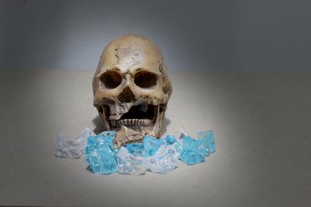 decayed teeth: dientes cariados cr�neo humano con el caramelo en el fondo de madera. como un pueblo que come el caramelo demasiado.