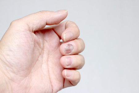cutaneous: Fungus Infection on Nails Hand, Finger with onychomycosis. - soft focus