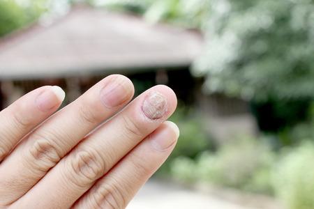 toenail fungus: Fungus Infection on Nails Hand, Finger with onychomycosis, A toenail fungus. - soft focus