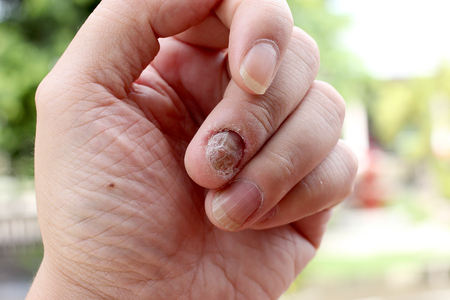 fungal disease: Fungus Infection on Nails Hand, Finger with onychomycosis, A toenail fungus. - soft focus