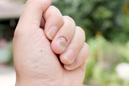 footcare: Fungus Infection on Nails Hand, Finger with onychomycosis, A toenail fungus. - soft focus
