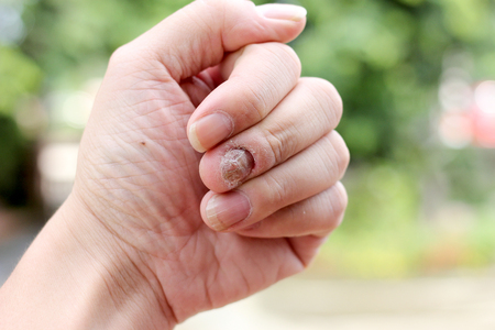 toenail: Fungus Infection on Nails Hand, Finger with onychomycosis, A toenail fungus. - soft focus