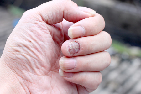 itraconazole: Fungus Infection on Nails Hand, Finger with onychomycosis. - soft focus