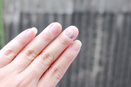 fungal disease: Fungus Infection on Nails Hand, Finger with onychomycosis. - soft focus