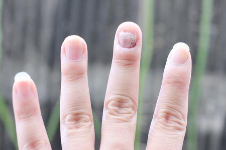 Pilz-Infektion auf Nägel Hand, Finger mit Onychomykose. - Weicher Fokus Standard-Bild - 63665187