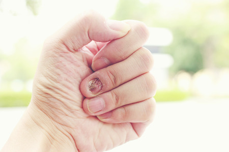 itraconazole: Fungal nail infection and damage on human hand. Finger with onychomycosis
