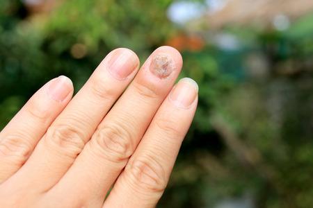 爪の手指爪真菌症の真菌感染症 写真素材