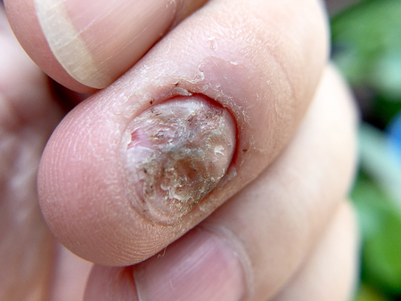 discolored: Fungal nail infection and damage on human hand. Finger with onychomycosis, disgusting bitten fingernails on mans hand.