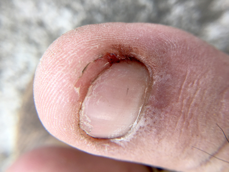 Damaged toenail Stock Photo