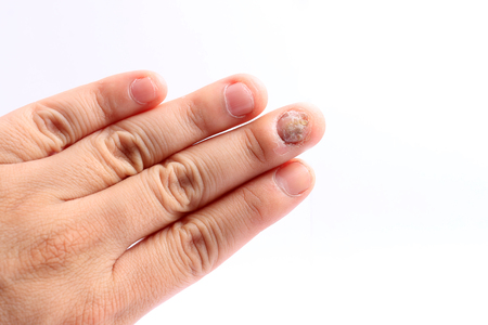 itraconazole: Fungus Infection on Nails Hand, Finger with onychomycosis, Fungal infection on nails handisolated on white background.