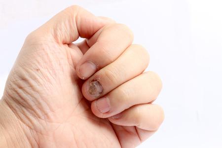 Pilz-Infektion auf Nägel Hand, Finger mit Onychomykose, Pilzinfektion auf Nägel handisoliert auf weißem Hintergrund. Standard-Bild
