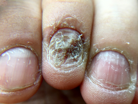 Big close up of fungus Infection on Nails Hand, Finger with onychomycosis, Fungal infection on nails.