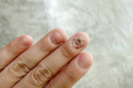 Close up of fungus nail infection. Fungal infection on nails hand, finger with onychomycosis, damage on human hand on gray concrete wall background. Disease and Symptom concept.