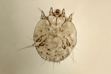 itch-mite, parasitic microorganism of human skin, microscope view