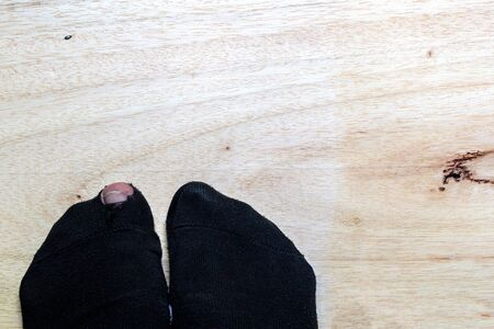 fu�sohle: Bein mit einem gro�en Loch in der Socke