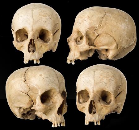 Crâne de l'homme dans quatre angles sur fond noir