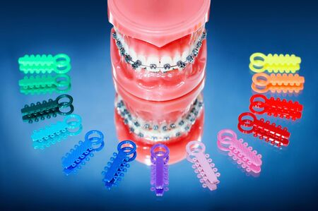 prosthodontics: Dentures with braces surrounded by multicolored ligature ties