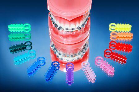 dentier: Prothèses dentaires avec accolades entourés par des liens de ligature multicolore