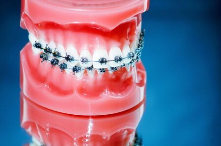 Dentures with braces on blue background photo