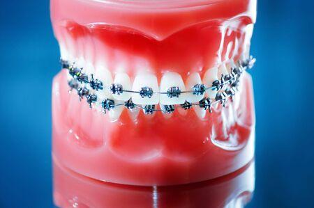 prosthodontics: Dentiere con parentesi graffe su sfondo blu  Archivio Fotografico