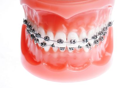 prosthodontics: Dentures with braces isolated on white