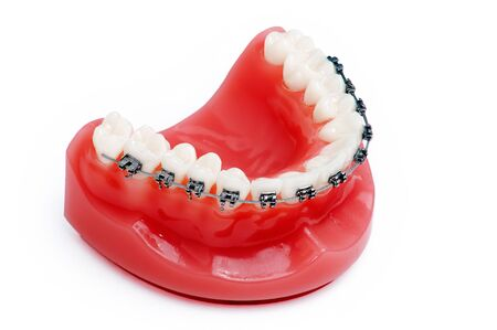 cavity braces: Denture with braces , upper jaw , isolated on white