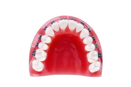 Denture with braces , upper jaw , isolated on white Stock Photo - 7805023