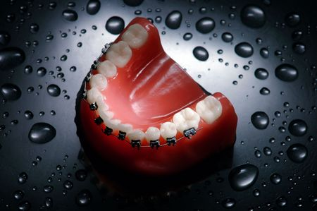 dentier: Les prothèses avec de l'eau accolades gouttes de fond, la mâchoire inférieure, éclairage dramatique Banque d'images