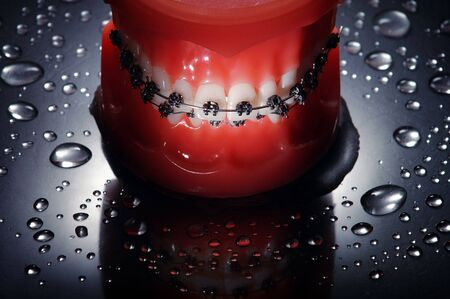 Dentures with braces water drops background,dramatic lighting photo